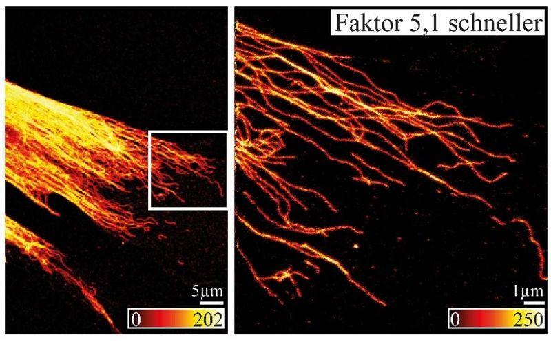 Ultrahochauflösende Fluoreszenzmikroskopie wird deutlich schneller